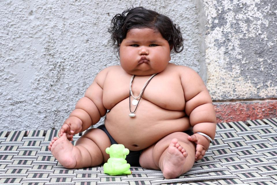 At 17 Kgs Eight Month Old Indian Baby Baffles Doctors And Parents