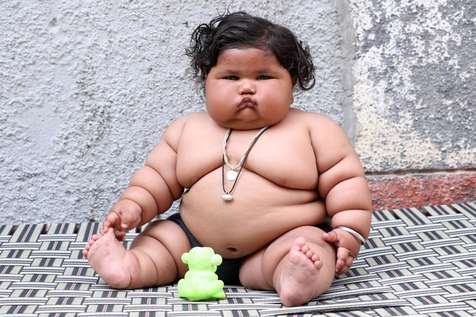 At 17 kgs, eight-month-old Indian baby baffles doctors and parents